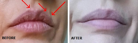 Before and after Lip Line Restoration Treatment