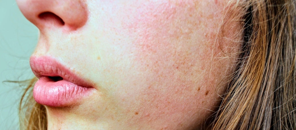 Rosacea and AHAs
