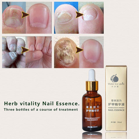 30ml  Health Skin Care Herbal Nail Repair Treatt Essential Oil Onychomycosis Remover Serum Beauty Disinfect