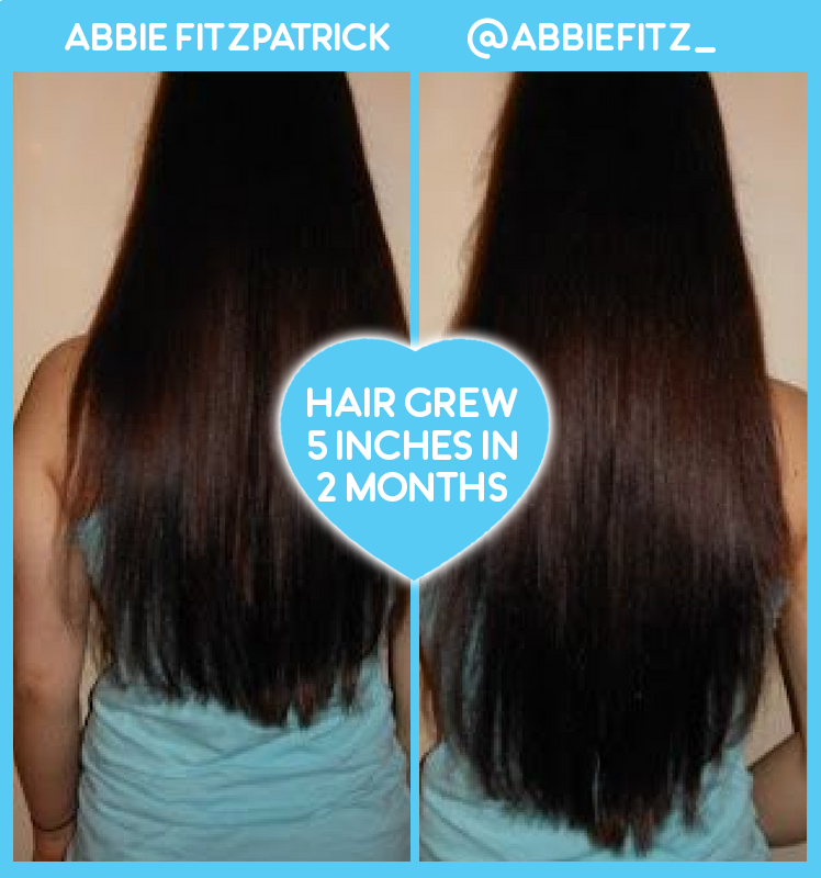 Abbie Fitzpatrick Amazing Hair Growth