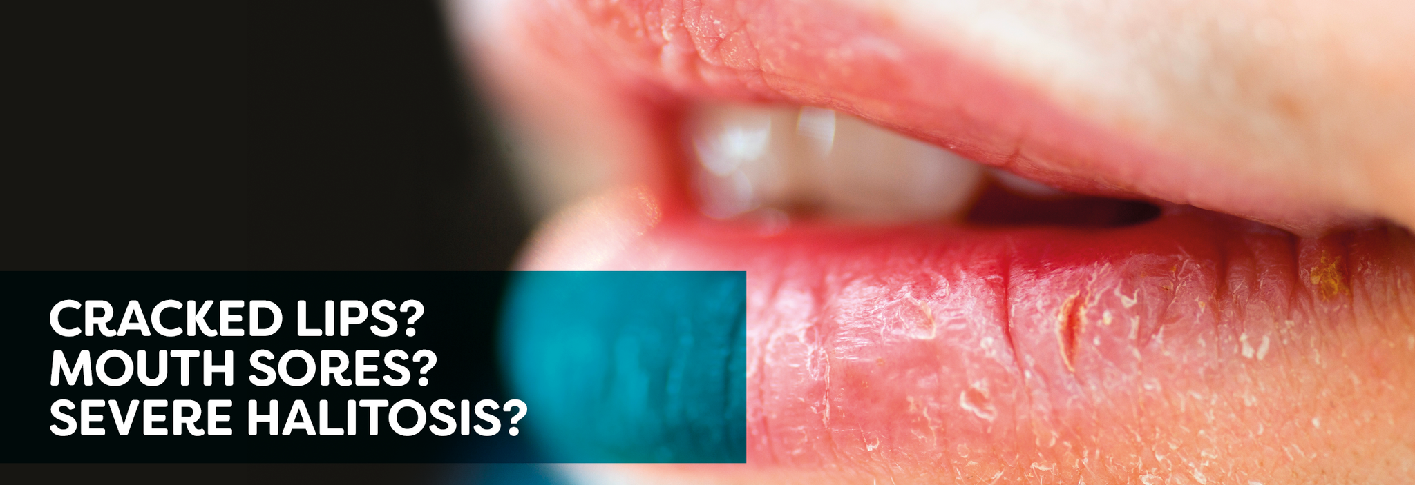 Cracked lips? Mouth sores? Severe Halitosis?