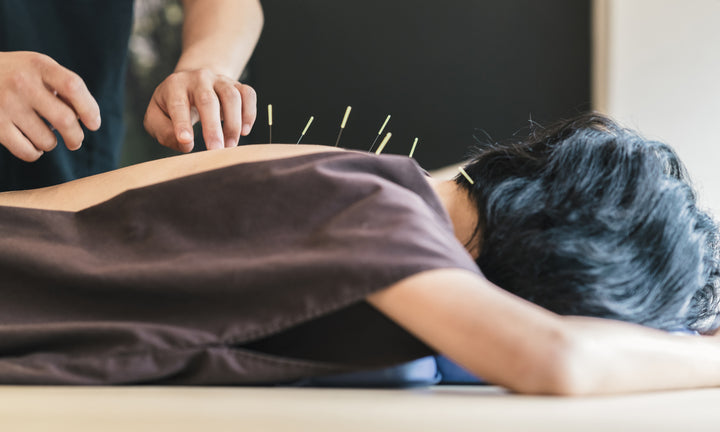 how acupuncture can help your skin