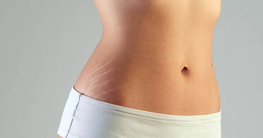 Effective home remedies for postpartum stretch marks.