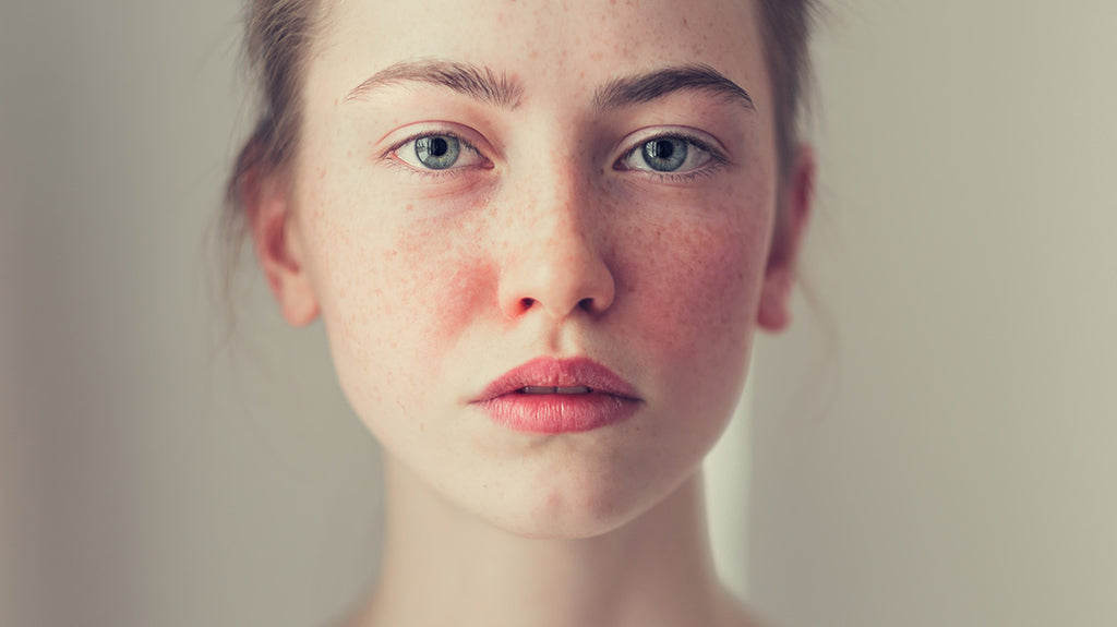 Symptoms and types of rosacea