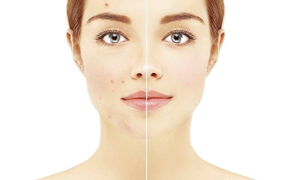 How to cure PCOS acne? Read this!