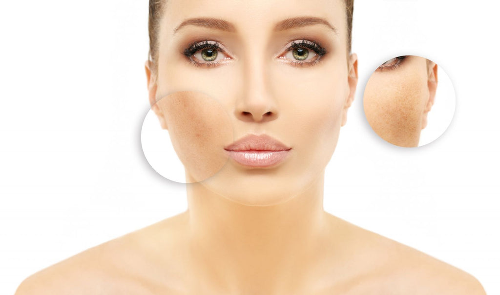 Hyperpigmentation - types, symptoms and treatments