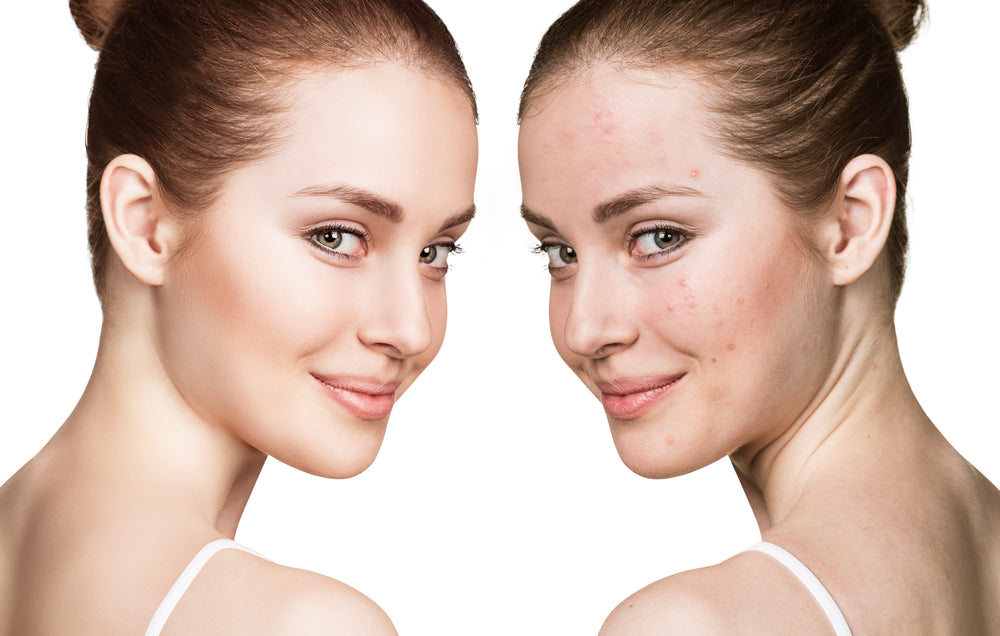 Skin care regimen before and after the menstrual cycle