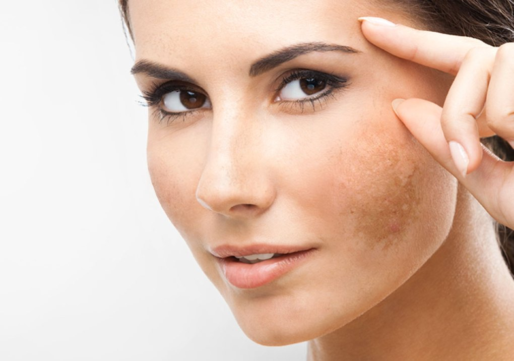 Skin pigmentation home remedies good to know about