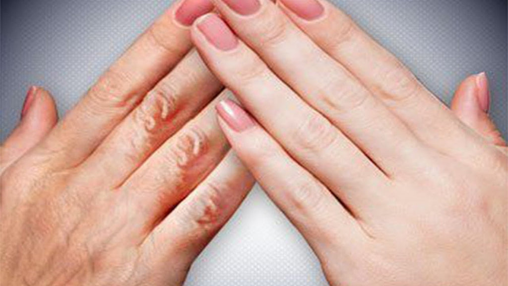 How to prevent the wrinkles on the hands and how to rejuvenate the hands?