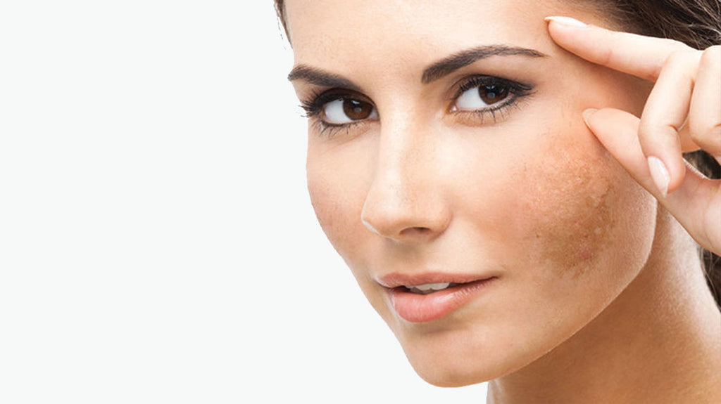 Melasma and how to beat it!
