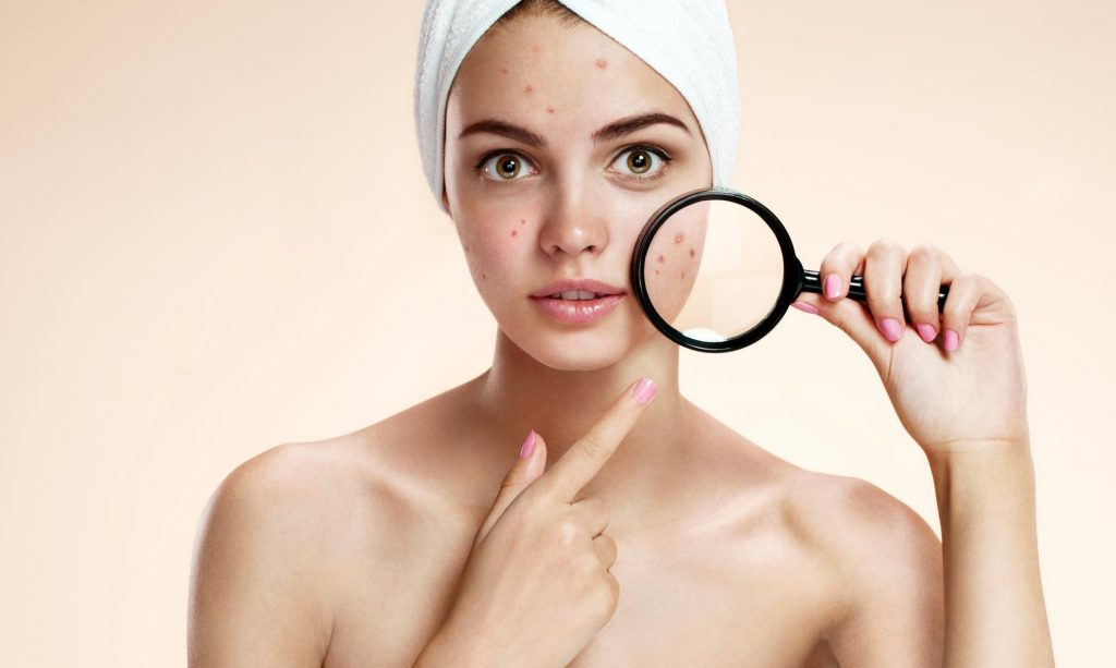 5 Best natural acne scar removers