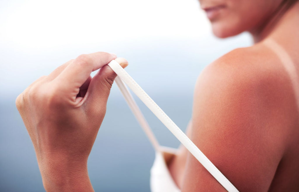 Save your skin from sunburn and sunspots