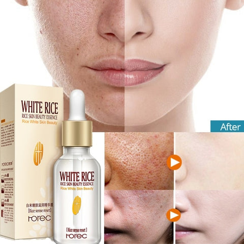 ROREC White Rice Skin Beauty Essence
