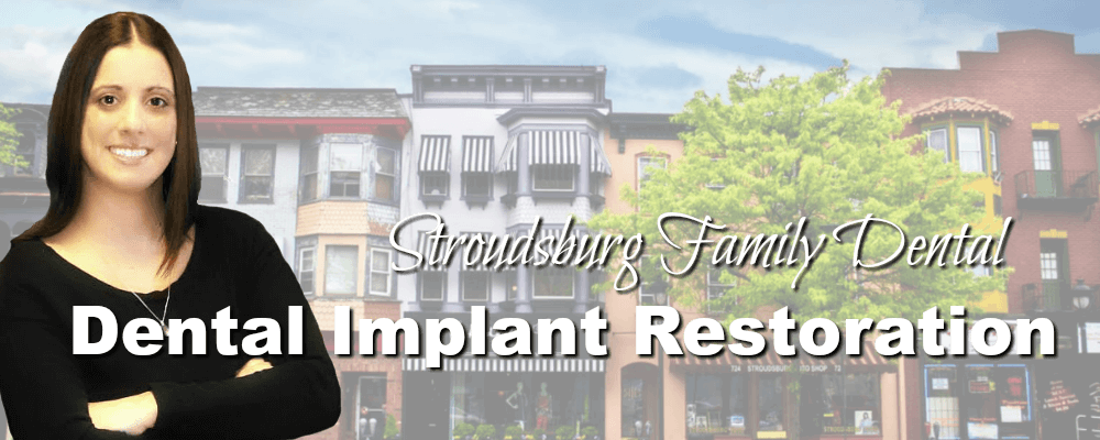 Stroudsburg PA Family Dentistry Dental Implant Restoration
