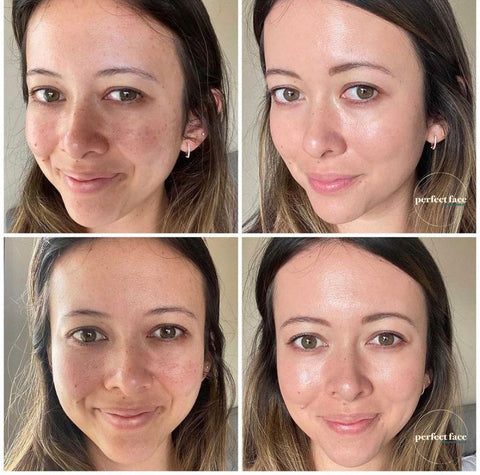 Skincare Transformation Microneedling Before and After