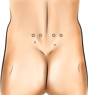 male backside with four yellow dots representing acupressure points