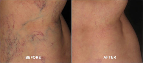 Varicose/Spider Vein Treatment Miami