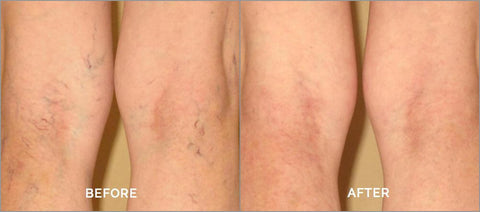 Varicose/Spider Vein Treatment