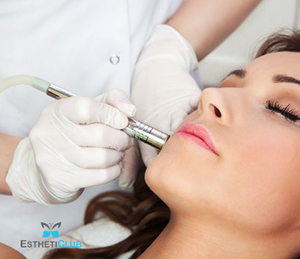 $150 for one microdermabrasion treatment