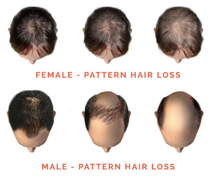 How To Restore Hair Growth And Prevent Hair Loss Without
