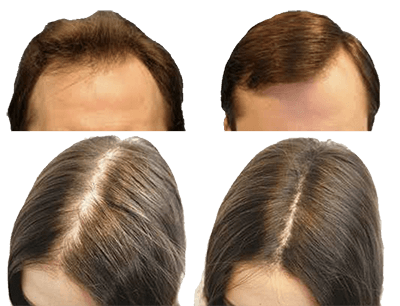 Who should use Hair Grow Plus?