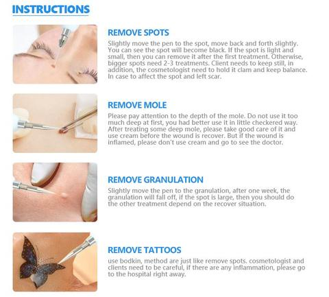 No More Moles - Painless Removal Device