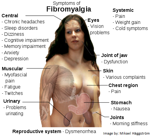 Fibromyalgia 101 for Massage Therapists, Spa & Salon Workers