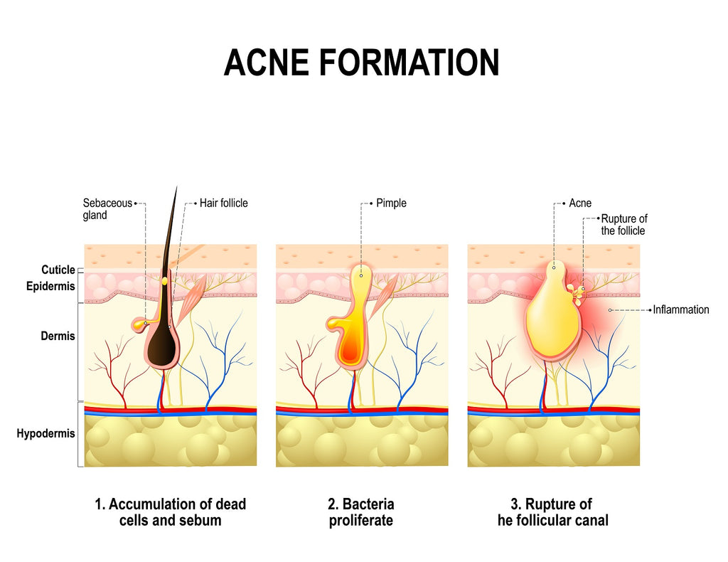 Acne 101 - for Massage Therapists, Spa & Salon Service Providers