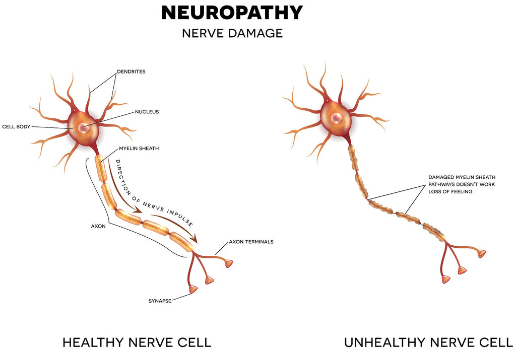 Diabetic Neuropathy & Peripheral Neuropathy Local Service Contraindication