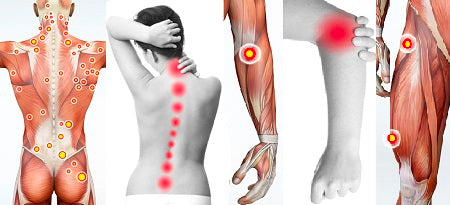 6 CE Hour Trigger Point Therapy $95