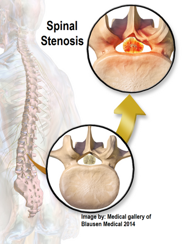 3 CE Hour Intro to Abnormal Spine Conditions $50