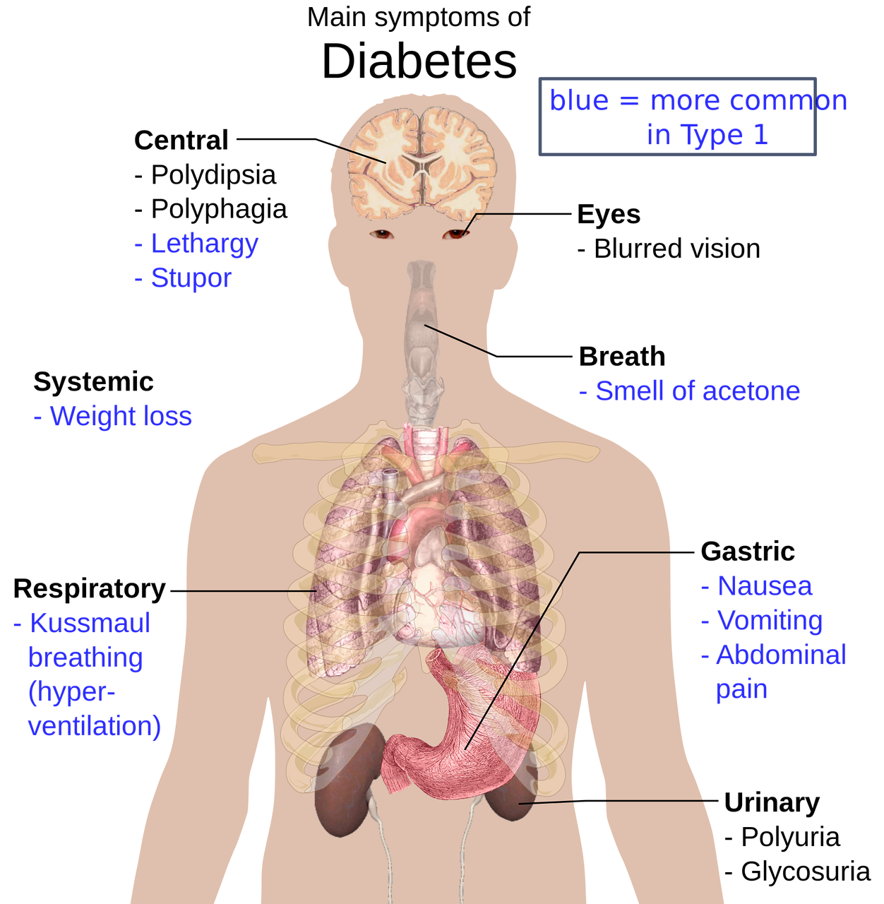 1 CE Hour ONLINE Medical Massage: Diabetes