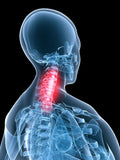 12 CE Advanced Deep Tissue, Palpation & Assessment for Back & Neck - 2 Day Class