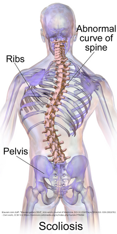 3 CE Hour Medical Massage: Scoliosis $50