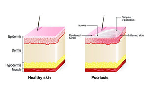 Managing Psoriasis: 3 Natural Products You Can Rely on | Waterlilies And Company