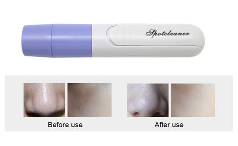 Mini Travel Pore Blackhead Remover - QuantumBitz