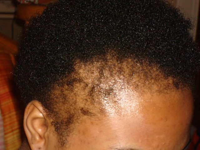 What Black Women Need To Know About Alopecia