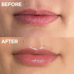 101 Ointment fixes chapped lips