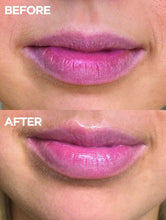 Load image into Gallery viewer, Before & after of lips using 101 Ointment