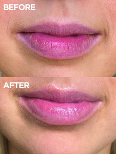 Before & after of lips using 101 Ointment