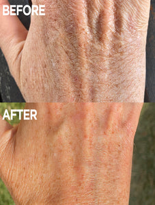 Before & After of Hand using Golden Dry Skin Miracle Salve