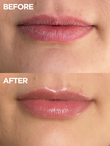 Before and after of lips using 101 Ointment