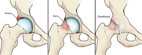 hip impingement exercises