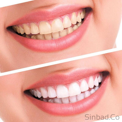 Tooth Whitening Gel Equipment-Sinbadco