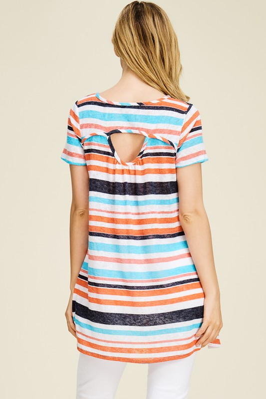Striped Tunic, Open Back Detail