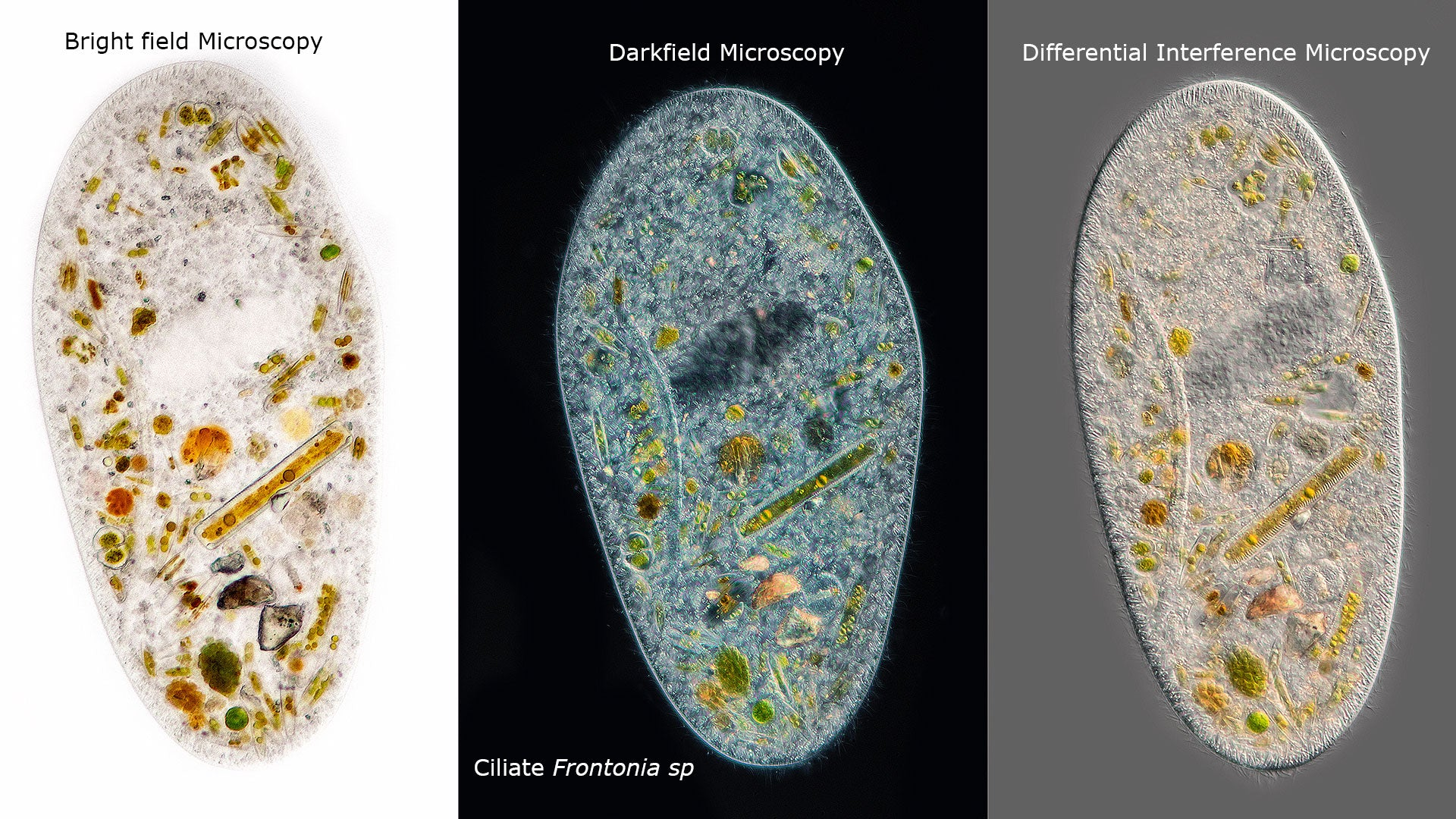 Ciliate Frontonia sp viewed with three different forms of microscopy. Frontonia are closely related to members of the genus Paramecium. Diatoms and other algae can be seen inside the cell.