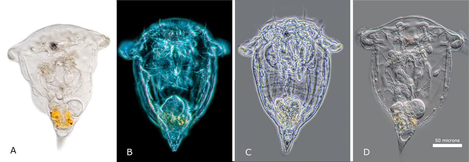 Rotifer Synchaeta pectinata viewed with A) Brightfield  B) Darkfield C) Phase contrast and D) DIC microscopy.