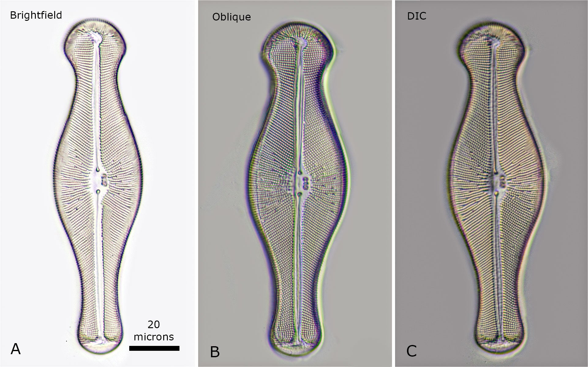 Diatom Gomphonema geminatum A) Brightfield microscopy B) Oblique lighting C) DIC microscopy. Each image is a focus stacks of 6 images to increase the depth of field.