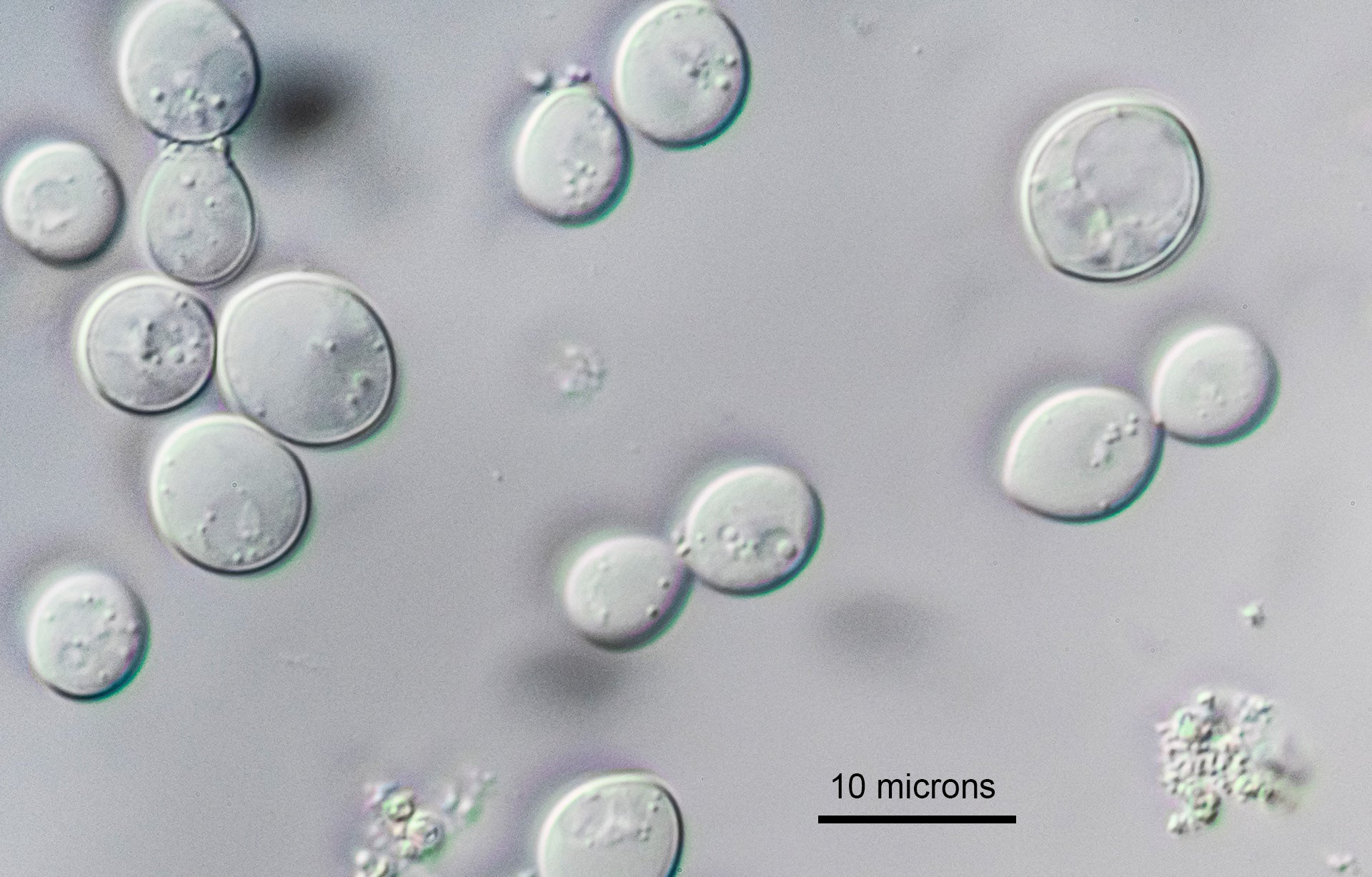 Yeast Cells DIC