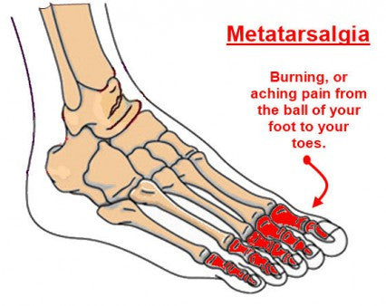 Running Shoes For Metatarsal Pain